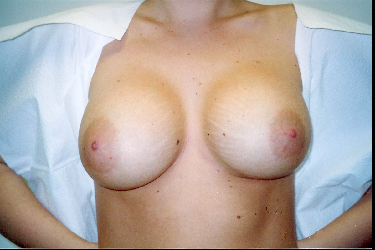 Amazing breast growth video